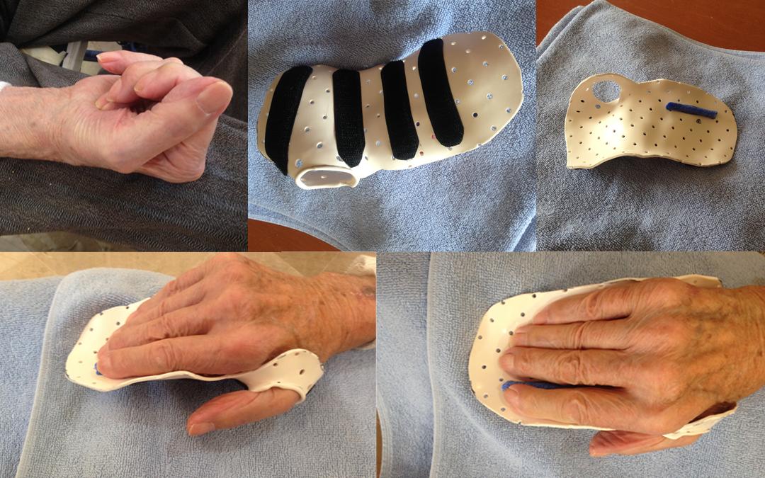 Nuestro servicio de terapia ocupacional continúa innovando con férulas personalizadas